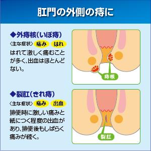 Thuốc bôi chữa trĩ Nhật Bản