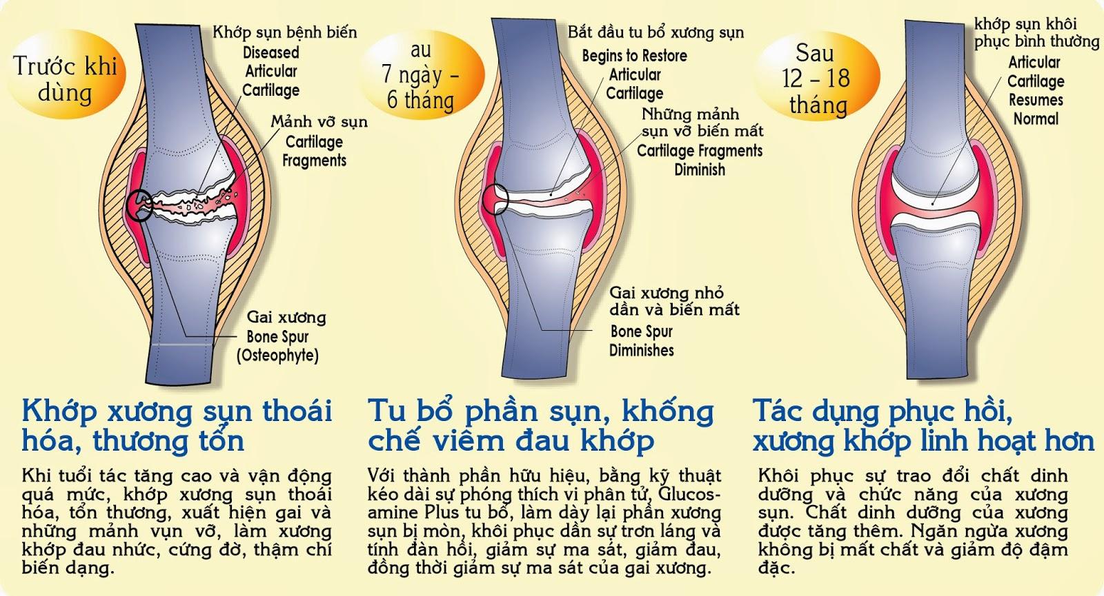 vien uong bo xuong khop nature made tripleflex triple strength d3 cong dung